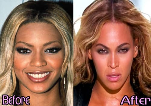 Before And After Beyonce Plastic Surgery photo - 1