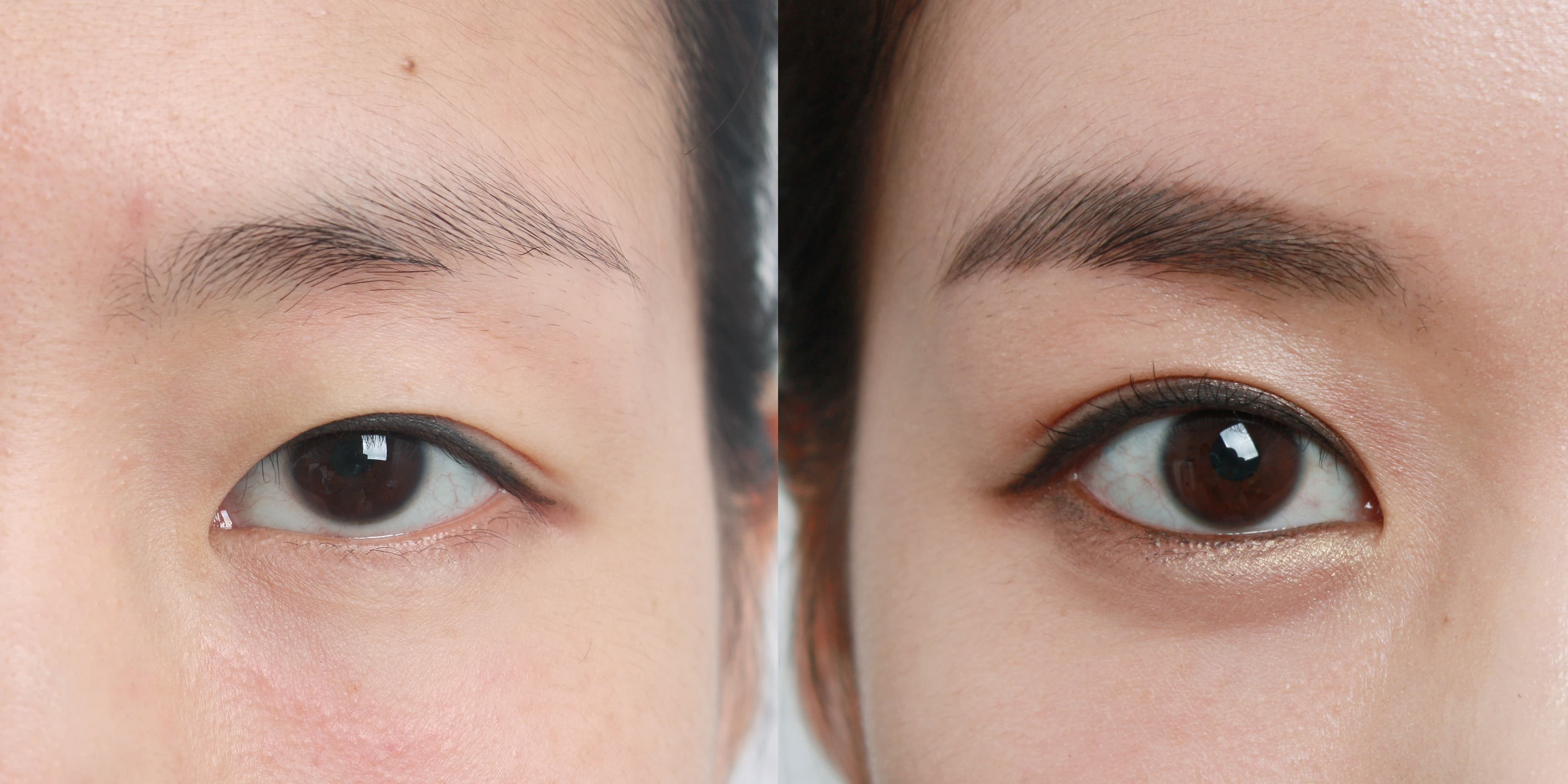 Before And After Eye Plastic Surgery Korea photo - 1