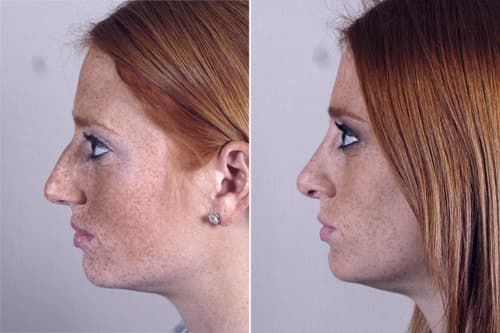 Before And After Face Plastic Surgery photo - 1