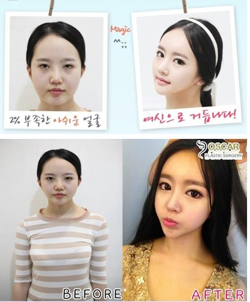 Before And After Korean Plastic Surgery Tumblr photo - 1