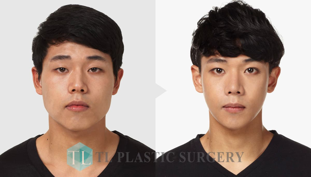 Before And After Male To Female Plastic Surgery Pics photo - 1