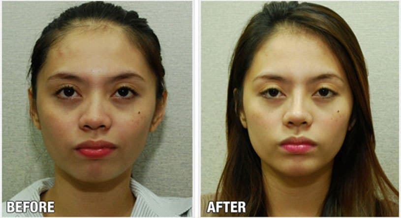 Before And After Pictures Of Filipinas With Plastic Surgery photo - 1