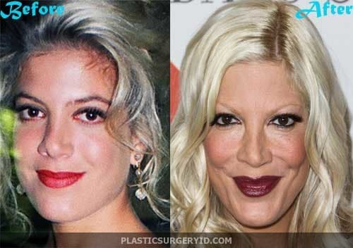 Before And After Plastic Surgery Actresses Bad photo - 1