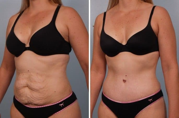 Before And After Plastic Surgery Breast photo - 1