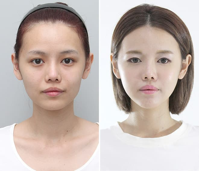 Before And After Plastic Surgery Breast Augmentation photo - 1
