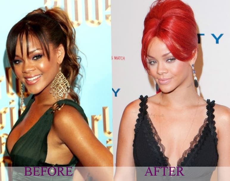 Before And After Plastic Surgery Celebrity photo - 1