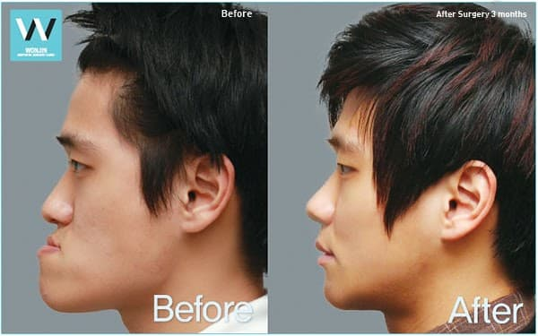 Before And After Plastic Surgery Clinic Makeover photo - 1