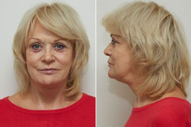 Before And After Plastic Surgery Gone Wrong photo - 1