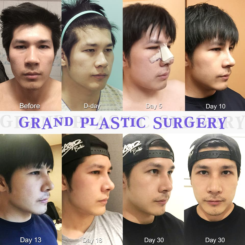 Before And After Plastic Surgery Korea Real photo - 1