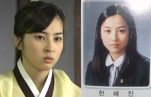 Before And After Plastic Surgery Korean Drama Wiki photo - 1