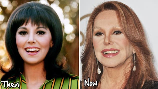 Before And After Plastic Surgery Marlo Thomas photo - 1