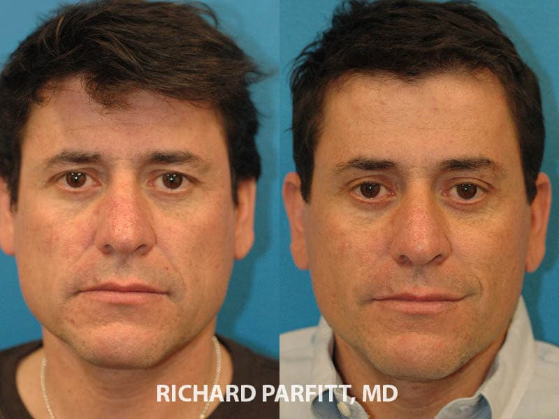 Before And After Plastic Surgery Men photo - 1