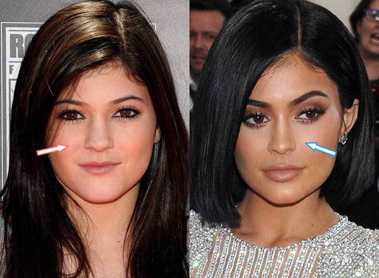 Before And After Plastic Surgery Nose photo - 1
