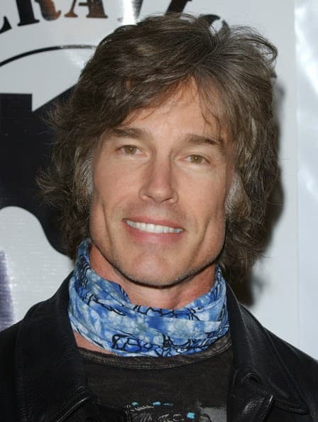 Before And After Plastic Surgery Photo Of Ron Moss photo - 1