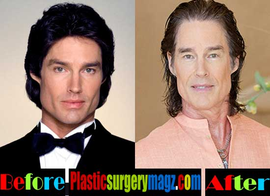 Before And After Plastic Surgery Photo Of Ronn Moss photo - 1