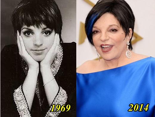 Before And After Plastic Surgery Pics Of Liza Minnelli photo - 1