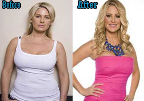 Before And After Plastic Surgery Real Housewives photo - 1