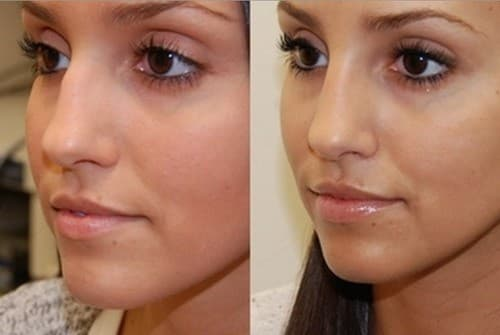 Before And After Plastic Surgery Simulator photo - 1