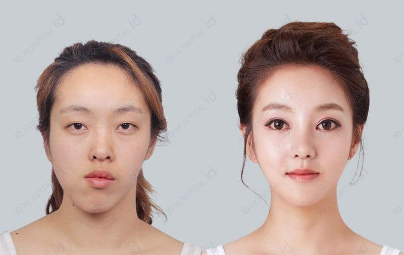 Before And After Plastic Surgery South Korea photo - 1
