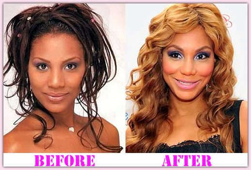 Before And After Plastic Surgery Tamar Braxton photo - 1