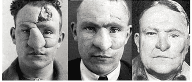 Before And After Ww1 Plastic Surgery photo - 1