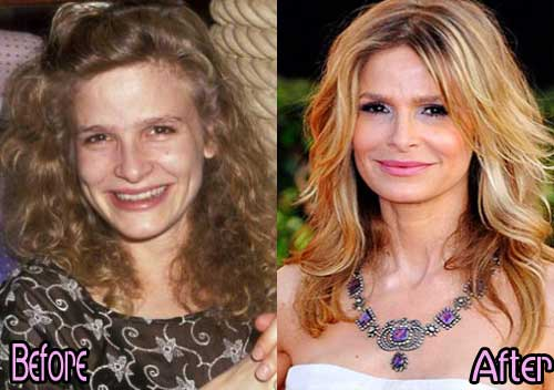 Before Plastic Surgery Celebrities photo - 1