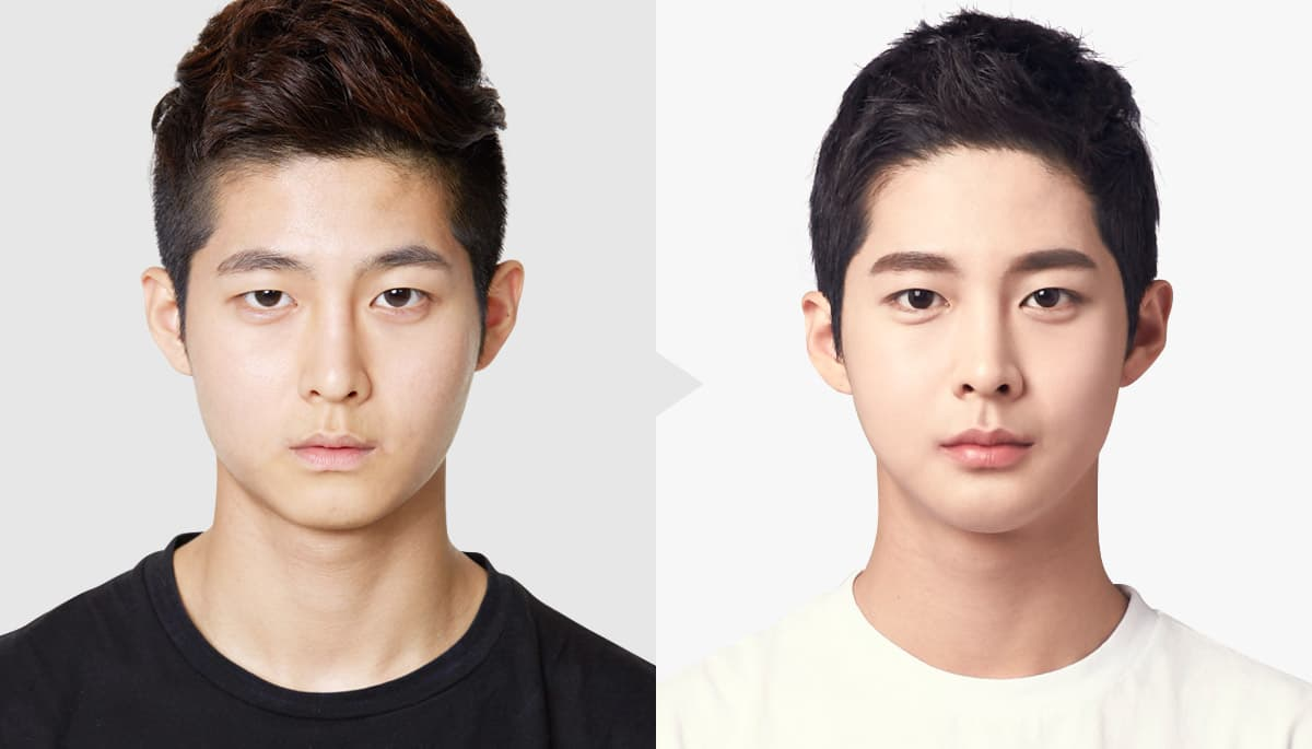 Before Plastic Surgery Procers photo - 1
