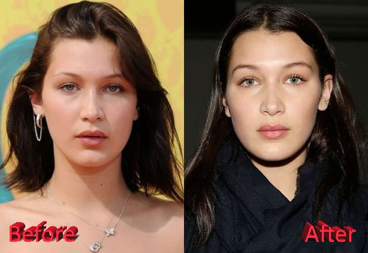Bella Hadid Lips Before Plastic Surgery photo - 1