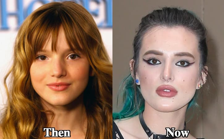Bella Throne Plastic Surgery Before And After photo - 1
