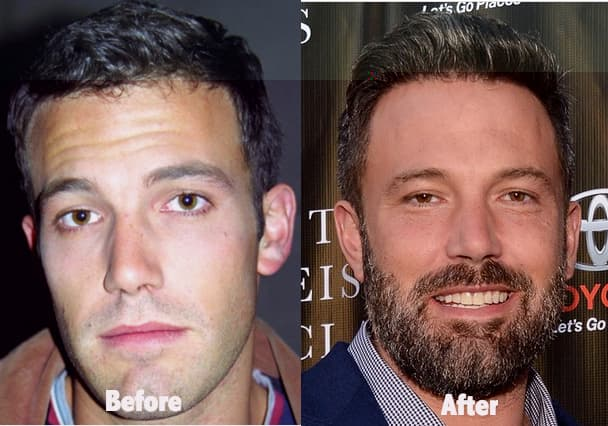 Ben Affleck Face Before And After Plastic Surgery photo - 1