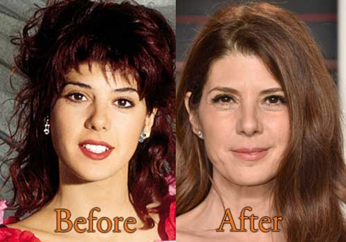 Bernadette Peters Plastic Surgery Before After photo - 1