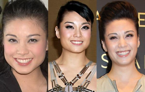 Bernice Liu Plastic Surgery Before And After photo - 1