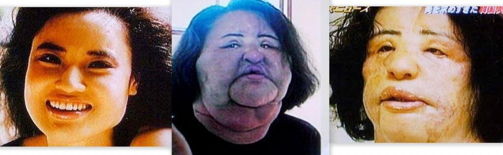 Best And Worst Plastic Surgery Before And After photo - 1