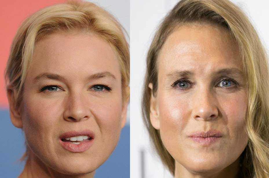 Best Celebrity Before And After Plastic Surgery photo - 1