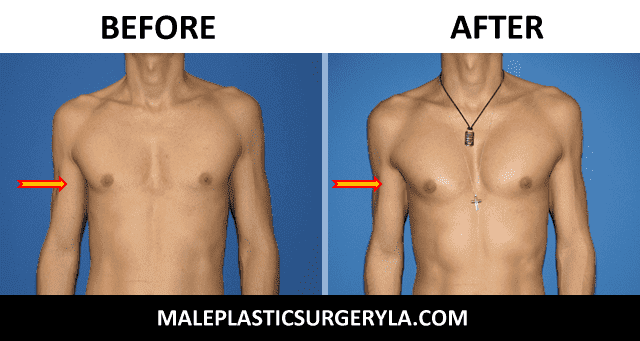 Best Male Plastic Surgery Before And After photo - 1
