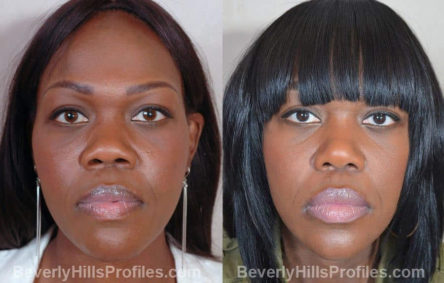 Best Plastic Surgery Before After photo - 1