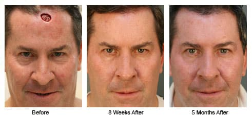 Best Plastic Surgery In The World Before And After photo - 1