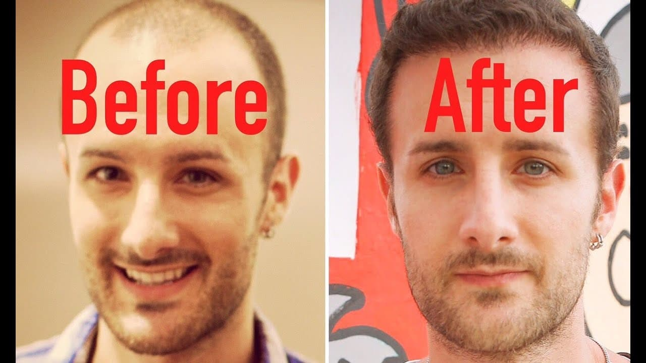 Best Results From Plastic Surgery Before And After photo - 1