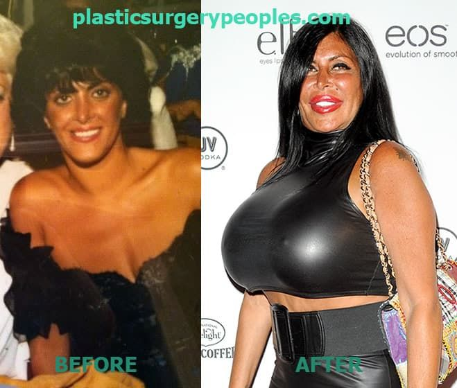 Big Ang Before Any Plastic Surgery photo - 1