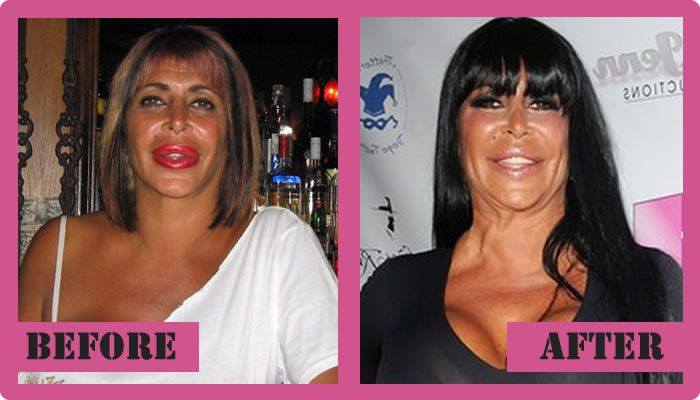 Big Ang Mob Wife Before Plastic Surgery photo - 1