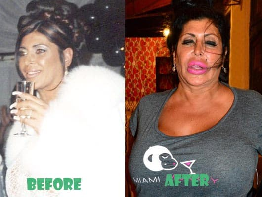Big Ang Plastic Surgery Before And After photo - 1