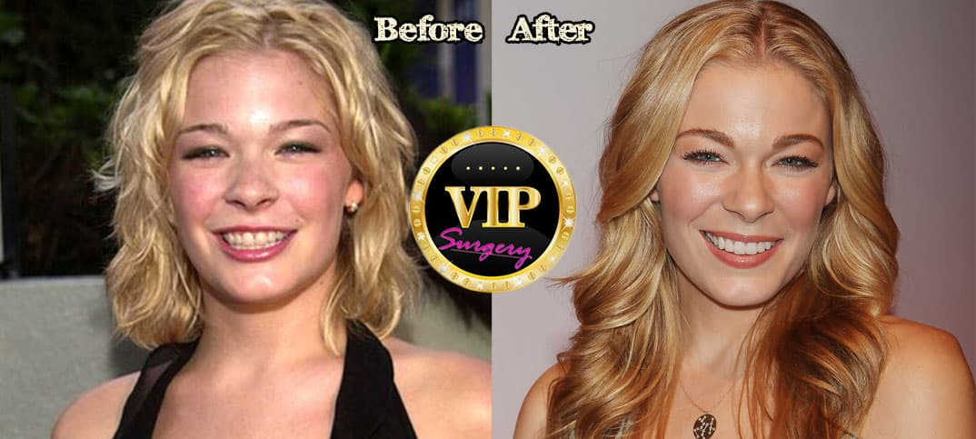Billie Piper Plastic Surgery Before And After photo - 1