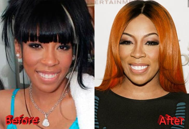 Black Celebrities Plastic Surgery Before And After photo - 1