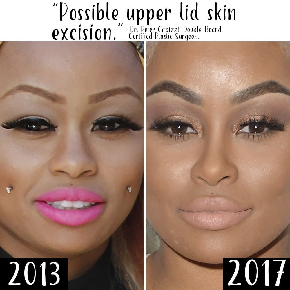 Black China Before After Plastic Surgery photo - 1