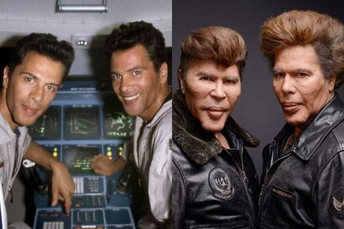 Bogdanoff Brothers Before Plastic Surgery photo - 1