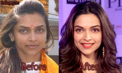 Bollywood Celebrities With Plastic Surgery Before And After photo - 1