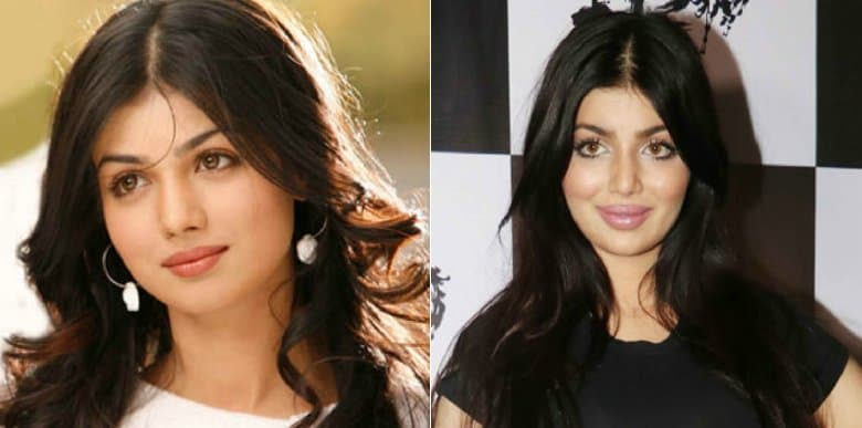 Bollywood Celebs Before And After Plastic Surgery photo - 1