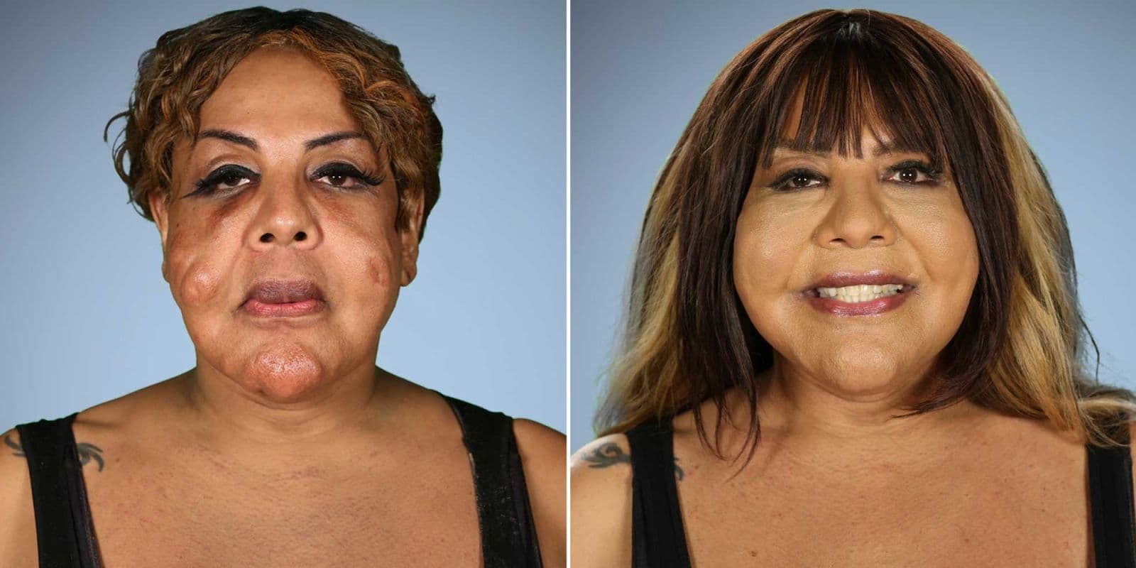 Botched Plastic Surgery Rajee Before And After photo - 1