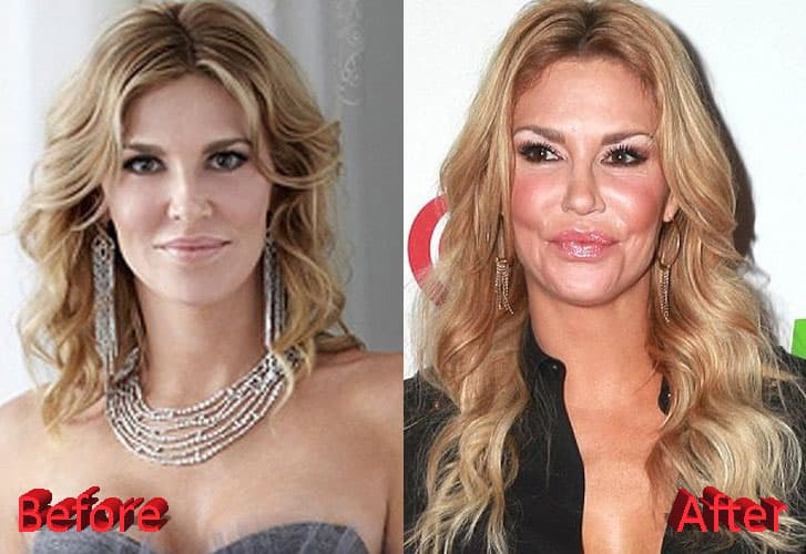 Brandi Glanville Before And After Plastic Surgery photo - 1