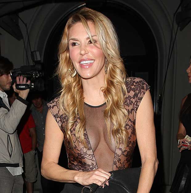 Brandi Glanville Rhobh Plastic Surgery Before And After photo - 1